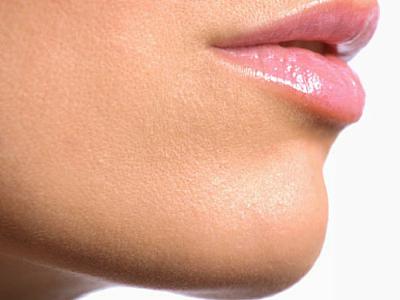 34 Mentoplastia - cirugias faciales - Andres Urrego Cirujano Plastico